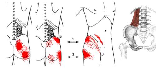 【腰方形筋が原因の痛みやしびれ】腰~殿部
