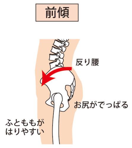 骨盤前傾・腰椎前弯=反り腰が腰痛の大きな原因