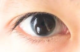 眼瞼下垂の病名の認知度は17.7% さらに眼瞼下垂保険適用手術の認知度が低いことが判明