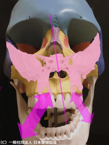 右の内側翼突筋の緊張が強いと蝶形骨(薄ピンク)を右下に傾けるベクトルが働く。