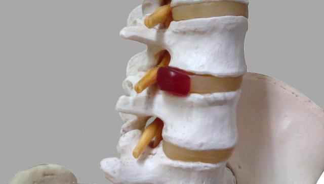 椎間板ヘルニア・脊柱管狭窄症 手術をしても治らなかったらやるべきこと【川口陽海の腰痛改善教室 第20回】