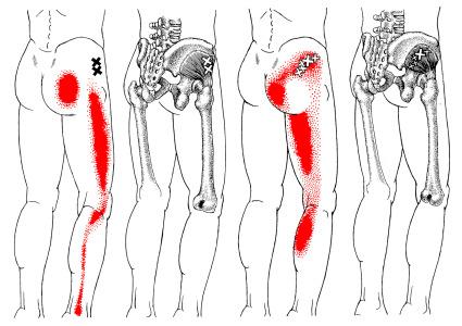 股関節の奥にある「小殿筋」が原因でおこる痛みのパターン