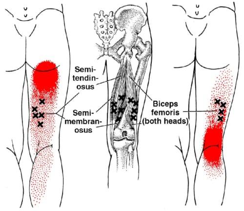 【大腿二頭筋(ハムストリング)のトリガーポイントと症状の出る部位】