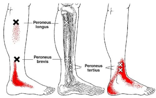 腓骨筋が過緊張をおこすと、それだけで脛の外側や足首などに強い痛みをおこすことがあります